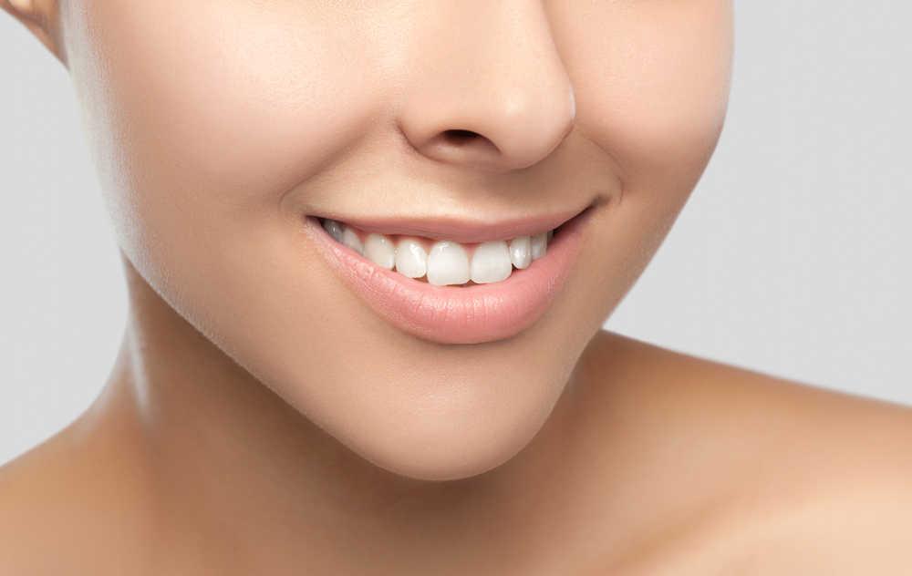 Blanqueamiento y carillas: la solución para tu sonrisa